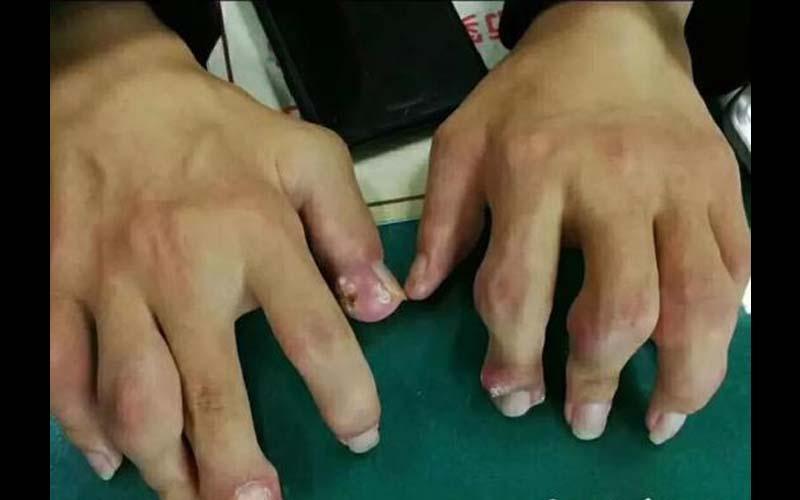23歲男「雙手長怪石」他向醫生承認:多年來只吃肉、飲料當水喝!