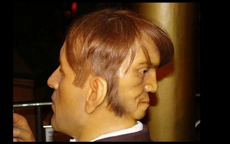 沒PS修圖!他的後腦長出「晚上會冷笑低語」的第二張臉,最後選擇自我了結!